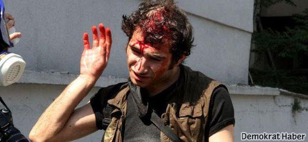 1 Mayıs'ta 9 gazeteci yaralandı