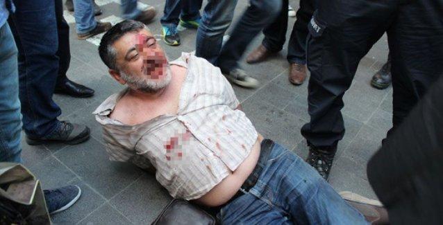 Ankara'da ülkücüler stantlara saldırdı, polis ise gazetecinin burnunu kırdı!