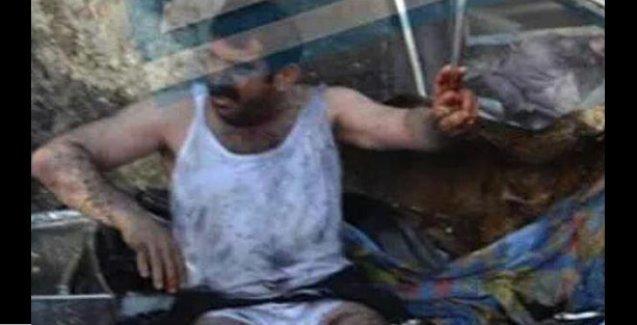 Diyarbakır saldırısında yaralanan Özcan: Bombadan ölmedik, polisin attığı gazdan ölecektik