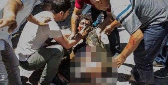 Suruç'ta yaralanan ve hayatını kaybedenlerin isimleri...