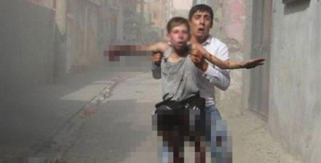 Cizre'de bomba atar mermisine dokunan çocuğun eli parçalandı