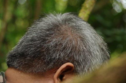 Saç Ekimi Süreci Nasıl İşler?