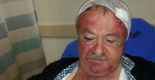 AKP'li başkanı eleştiren MHP'liyi hastanelik ettiler