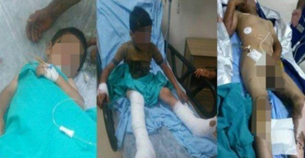 Lice'de özel harekatçıların bıraktığı cisim 3 çocuğun yanmasına neden oldu iddiası