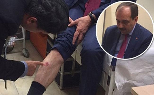 CHP'li Özer: Tayyar iddiasını ispatlarsa, gelip beni ısırabilir
