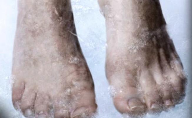 Dünyanın dondurulan ilk insanı 50 yıldır beklemeye devam ediyor