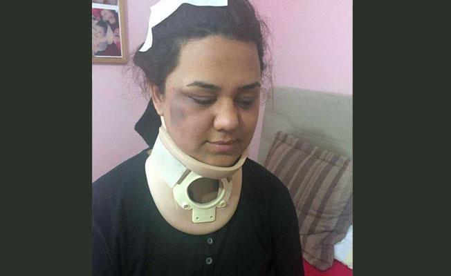 AKP'lilerin saldırısına uğrayan sandık görevlisi: Kafama okul sırası atıldı