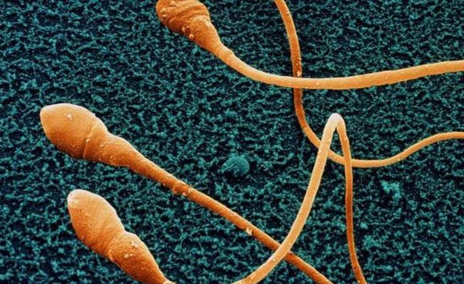 'Sperm sayısının azalması insanlığın sonunu getirebilir'