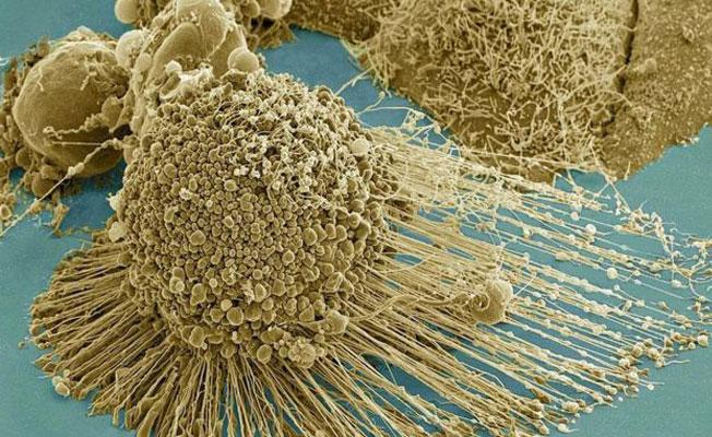 Kanserli hücreleri tamamen yok eden bir tedavi yöntemi bulundu iddiası