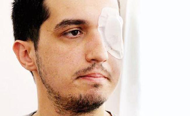 Gezi'de gözünü kaybeden akademisyene bakanlıktan 1 milyon lira tazminat