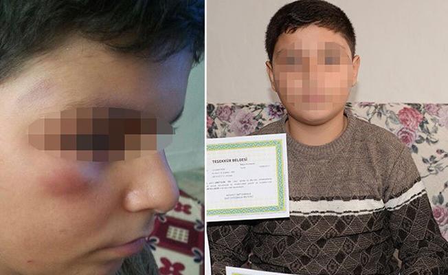 Öğretmen tarafından dövülen öğrenci, ailesi şikâyetçi olunca okuldan uzaklaştırıldı