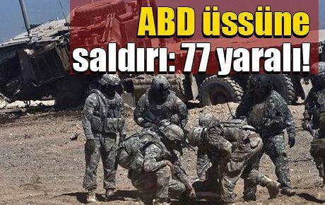 ABD üssüne saldırı: 77 yaralı