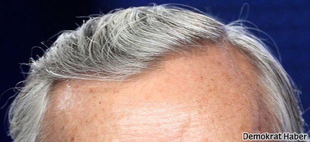 Beyaz saç yakında tarihe karışacak
