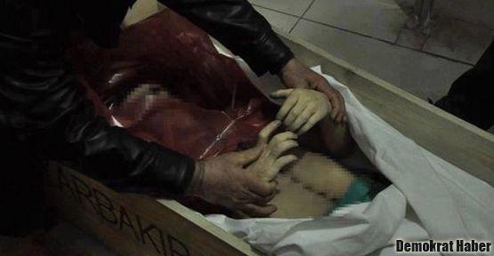 'Bomba elinde patladı' ama Öner'in elleri sağlam!