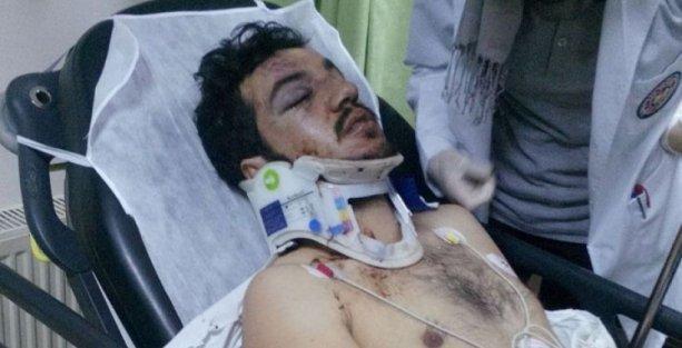 Çanakkale'de Kürt öğrencilere saldırı: 2 yaralı
