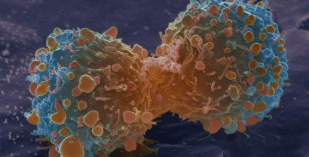 Sağlık Bakanlığı'nın 'kaderciliği': Kanser hastalarına 'ömür biçildi'
