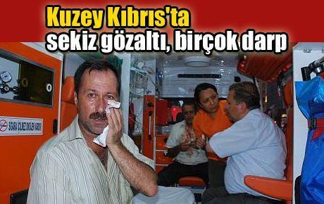Kuzey Kıbrıs'ta sekiz gözaltı, birçok darp