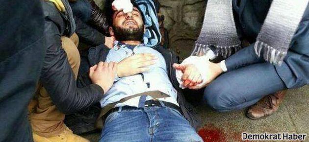 Marmara Üniversitesi'nde satırlı saldırı