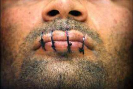 408 tutuklu ağzını dikti
