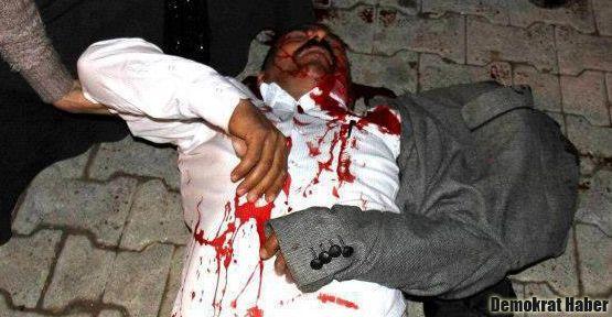 Polis BDP'li Eneş'i başından vurdu