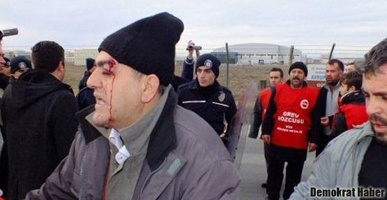 Polis direnişteki 80'e yakın işçiyi yaraladı