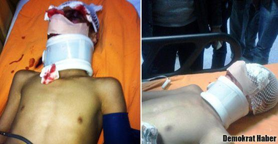 Polisin gazı 11 yaşındaki çocuğu ağır yaraladı