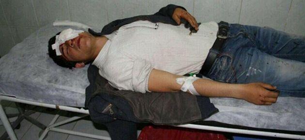 Seçim sonucu protestolarında bir çocuk gözünü kaybetti