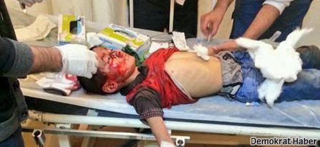 Silvan'da bir çocuk gaz bombası fişeği ile başından vuruldu