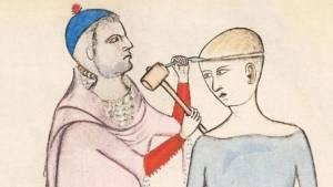 Atalarımız niçin kafatası deliyordu?